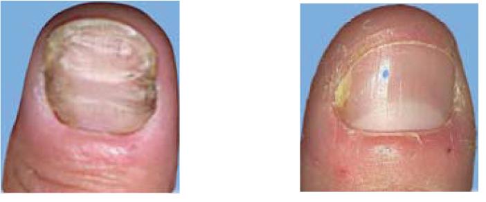 hur ser nagelsvamp ut