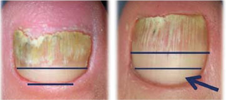 få bort nagelsvamp